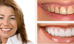 Smile Gallery Before and After Result 5 by Sarasota Dentist - Dr. Jenifer C. Back