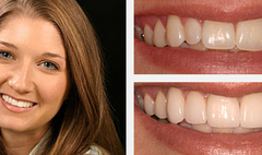 Smile Gallery Before and After Result 4 by Sarasota Dentist - Dr. Jenifer C. Back