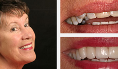 Smile Gallery Before and After Result 3 by Sarasota Dentist - Dr. Jenifer C. Back