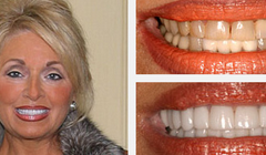 Smile Gallery Before and After Result 2 by Sarasota Dentist - Dr. Jenifer C. Back