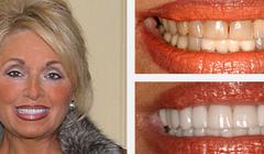 Smile Gallery Before and After Result 2 by Sarasota Dentist - Dr. Jenifer C. Back