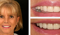 Smile Gallery Before and After Result 1 by Sarasota Dentist - Dr. Jenifer C. Back