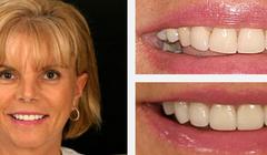 Smile Gallery Before and After Result 1 by Sarasota Dentist - Dr. Jenifer C. Back