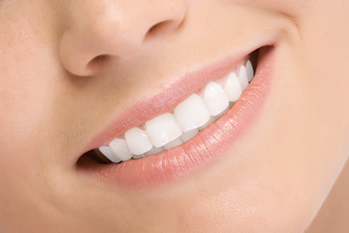Do's and Don'ts of Porcelain Veneers Sarasota