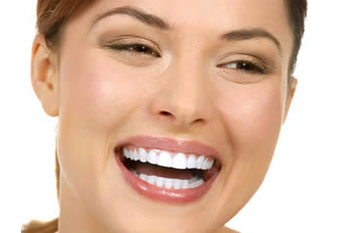Smile Makeover Sarasota FAQs
