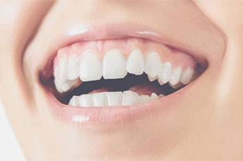 Teeth Whitening Sarasota FAQs