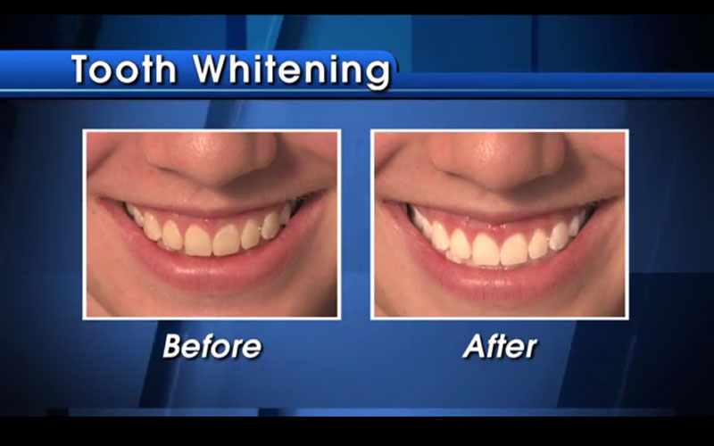 Sarasota Tooth Whitening Specialists