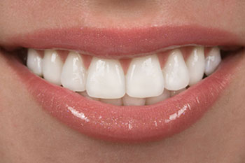 Veneers – How Long Do They Last?