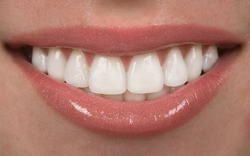 Whitening Your SMILE – The pros and cons of teeth whitening