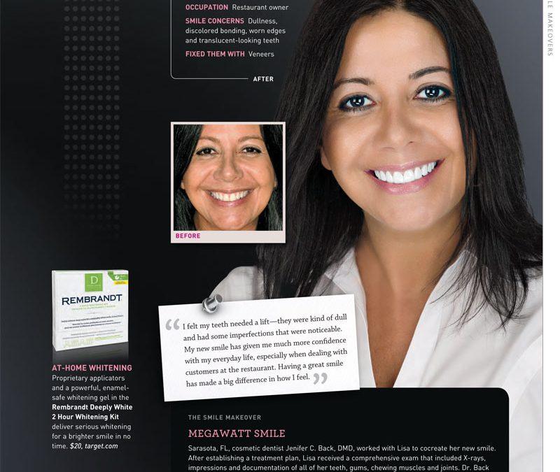 Lisa – Translucent looking teeth fixed with Veneers